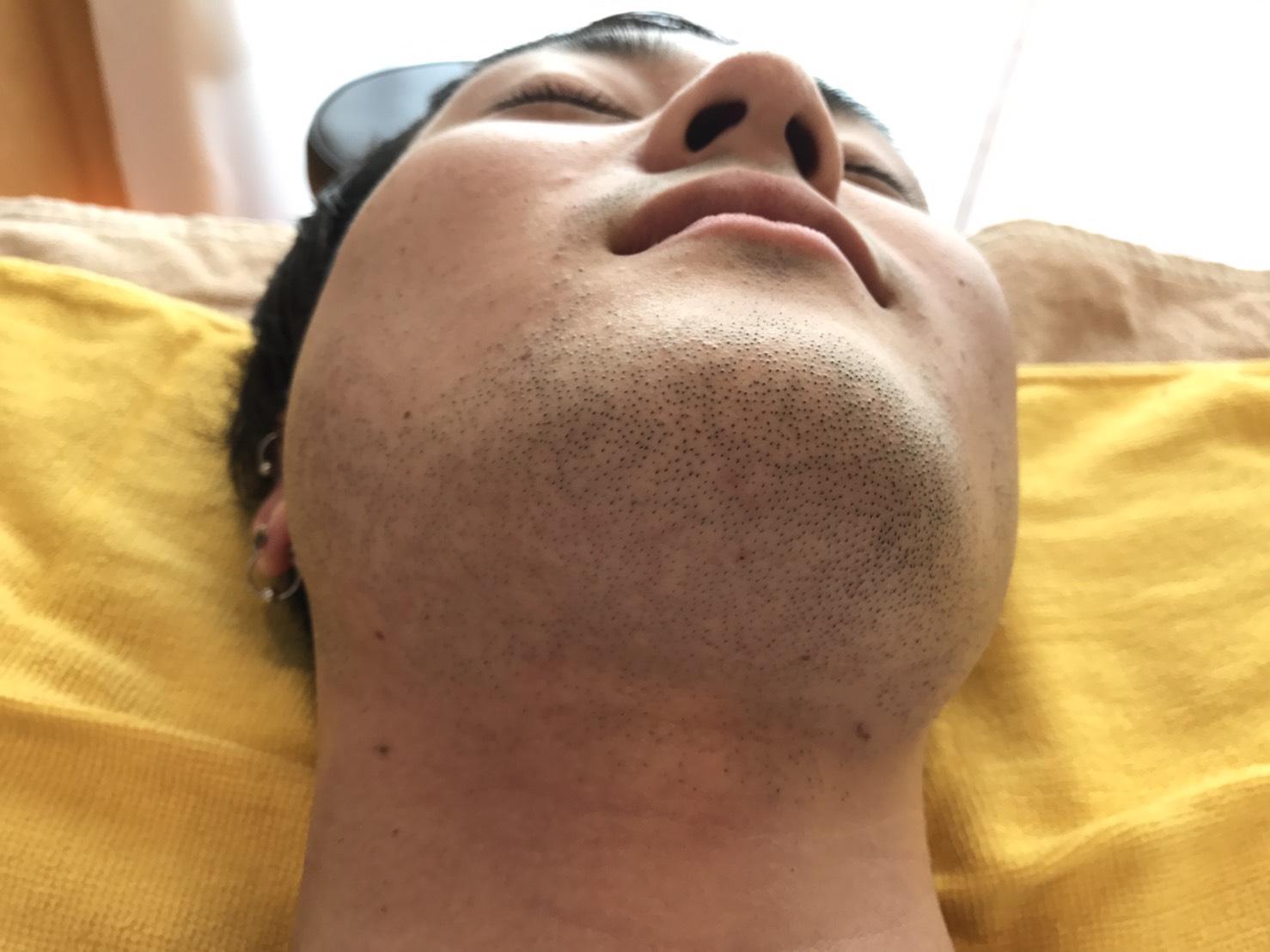 ヒゲ脱毛体験